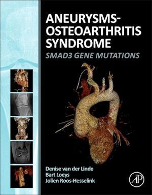 Aneurysms-Osteoarthritis Syndrome af Denise Van der Linde, Bart L. Loeys, Jolien Roos-Hesselink