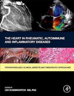 Bog, hardback The Heart in Rheumatic, Autoimmune and Inflammatory Diseases af Udi Nussinovitch