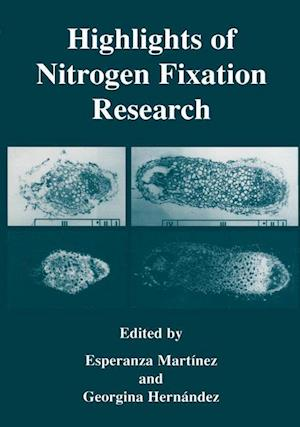 Highlights of Nitrogen Fixation Research