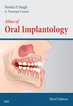 Atlas of Oral Implantology - Elsevieron VitalSource