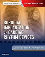 Surgical Implantation of Cardiac Rhythm Devices