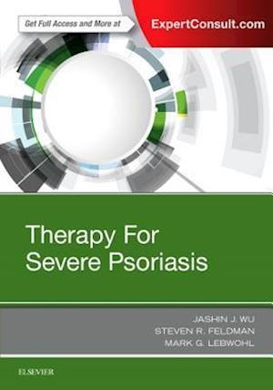 Bog, hardback Therapy for Severe Psoriasis af Jashin J. Wu