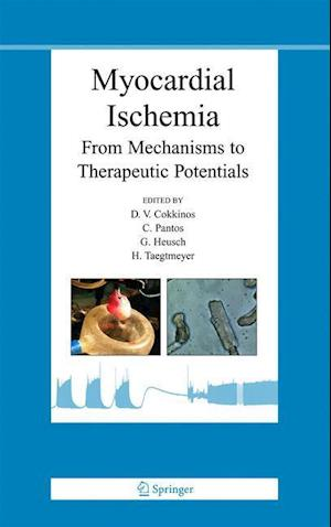 Myocardial Ischemia: From Mechanisms to Therapeutic Potentials