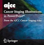 AJCC Cancer Staging Illustrations in PowerPoint