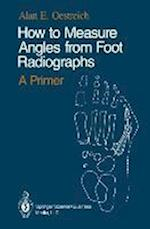 How to Measure Angles from Foot Radiographs: A Primer