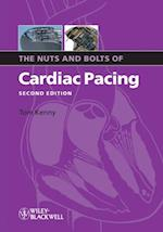 Nuts and Bolts of Cardiac Pacing (The Nuts and Bolts Series)