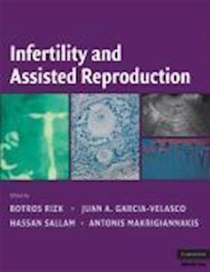 Bog, hardback Infertility and Assisted Reproduction af Botros R M B Rizk, Antonis Makrigiannakis, Juan A Garcia Velasco