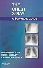 The Chest X-Ray, a Survival Guide