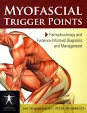 Myofascial Trigger Points: Pathophysiology And Evidence-Informed Diagnosis And Management