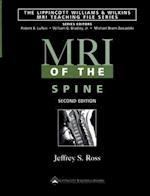 MRI of the Spine af Jeffrey S. Ross