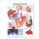 Dangers of Alcohol Anatomical Chart in Spanish (Peligros Del Alcohol)
