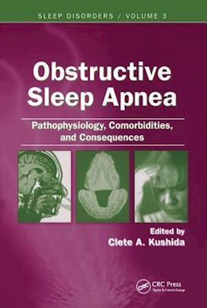 Obstructive Sleep Apnea: Pathophysiology, Comorbidities and Consequences