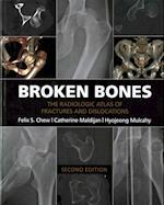 Broken Bones af Felix S. Chew
