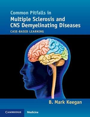 Common Pitfalls in Multiple Sclerosis and CNS Demyelinating Diseases