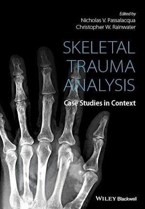 Skeletal Trauma Analysis
