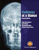 Radiology at a Glance (At a Glance)
