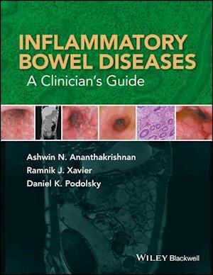 Bog, hardback Inflammatory Bowel Diseases - a Clinician's Guide af Ashwin N. Ananthakrishnan
