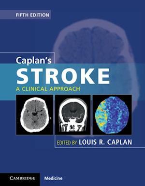 Caplan's Stroke