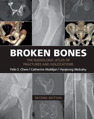 Broken Bones af Felix S. Chew, Catherine Maldijan, Hyojeong Mulcahy