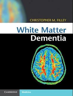White Matter Dementia af Christopher M. Filley