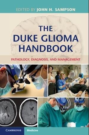 Duke Glioma Handbook