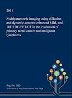 Multiparametric Imaging Using Diffusion and Dynamic-contrast Enhanced MRI, and 18F-FDG PET/CT in the Evaluation of Primary Rectal Cancer and Malignant