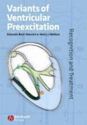 Variants of Ventricular Preexcitation
