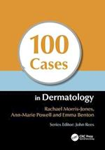 100 Cases in Dermatology (100 Cases, nr. 8)