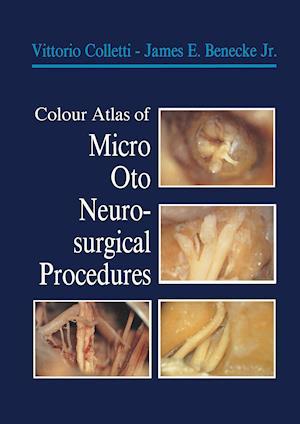 Colour Atlas of Micro-Oto-Neurosurgical Procedures