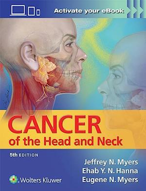 Bog, hardback Cancer of the Head and Neck af Jeffrey Myers