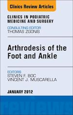 Arthrodesis of the Foot and Ankle, An Issue of Clinics in Podiatric Medicine and Surgery - E-Book af Vincent J. Muscarella, Steven Boc