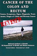 Cancer of the Colon and Rectum af Department of Health and Human Services