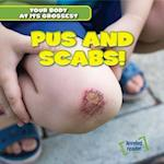 Pus and Scabs! (Your Body at Its Grossest)