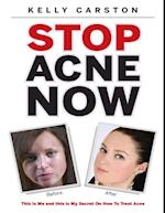 Stop Acne Now: This Is Me and This Is My Secret On How to Treat Acne