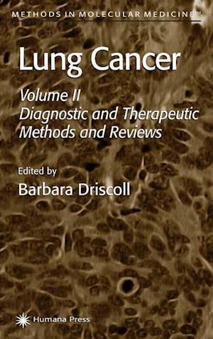 Lung Cancer : Volume 2: Diagnostic and Therapeutic Methods and Reviews