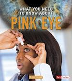 What You Need to Know About Pink Eye (Fact Finders)