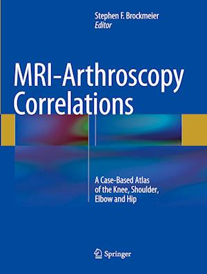 Bog, paperback MRI-Arthroscopy Correlations af Stephen F. Brockmeier