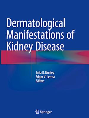 Bog, paperback Dermatological Manifestations of Kidney Disease af Julia R. Nunley