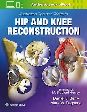 Illustrated Tips and Tricks in Hip and Knee Reconstructive and Replacement Surgery