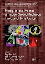 Principles and Practice of Image-Guided Radiation Therapy of Lung Cancer (Imaging in Medical Diagnosis and Therapy)