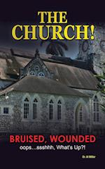 The Church!: Bruised, Wounded oops...ssshhh, What's up?!