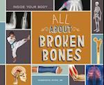 All About Broken Bones (Inside Your Body)