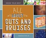All About Cuts and Bruises (Inside Your Body)