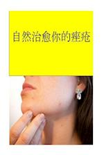 Cure Your Acne Naturally (Chinese)