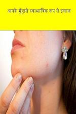 Cure Your Acne Naturally (Hindi)