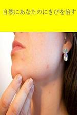 Cure Your Acne Naturally (Japanese)