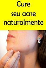 Cure Seu Acne Naturalmente