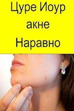 Cure Your Acne Naturally (Serbian)