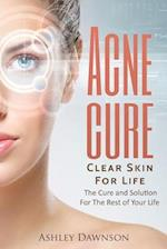 Acne Cure Clear Skin for Life