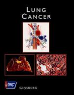 Lung Cancer (American Cancer Society Atlas of Clinical Oncology)